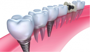 Dental Implants in Preston