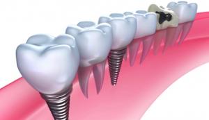 Dental Implants in Preston