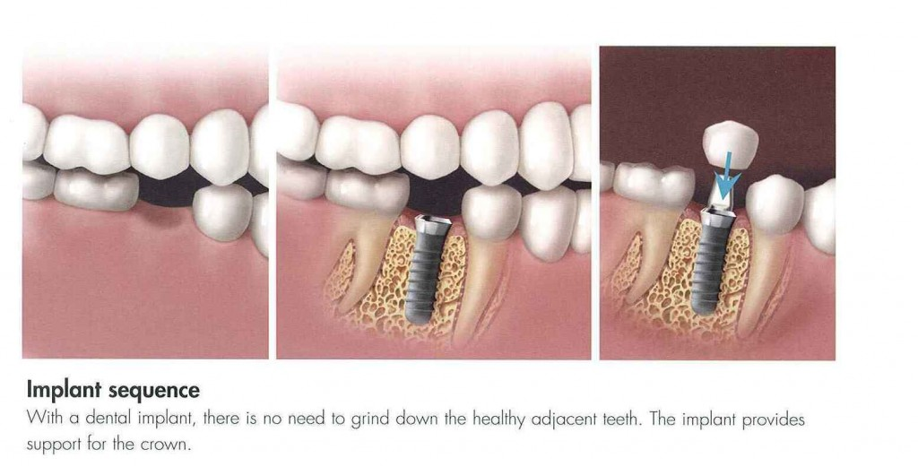 Dental Implants Procedure